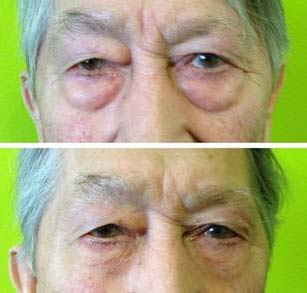 Jeunesse Instantly Ageless Before After Pictures